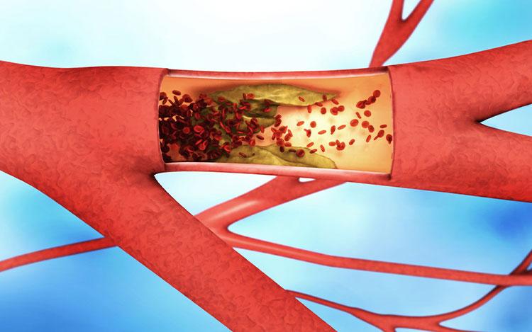 Periferik Arter Hastalıklarında Risk Faktörleri