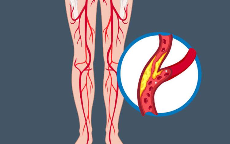 Periferik Arter Hastalığı Nedir?