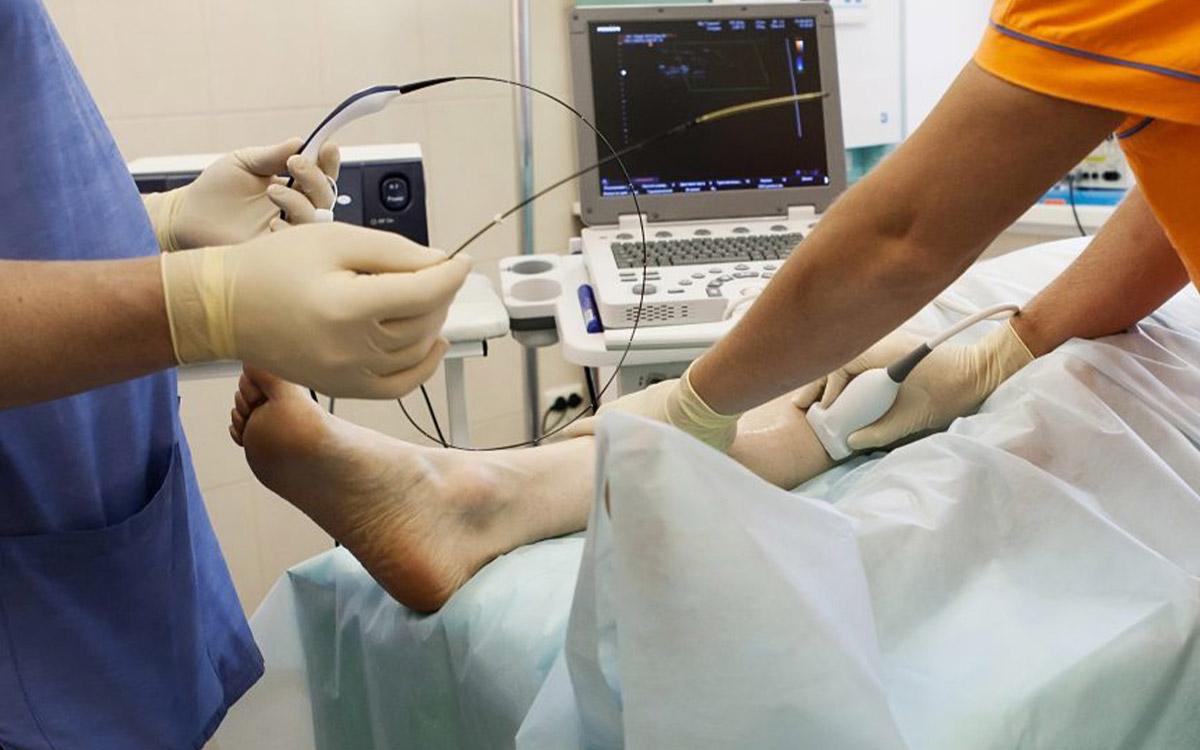 Damar İçi Radyofrekansla Varis Tedavisi